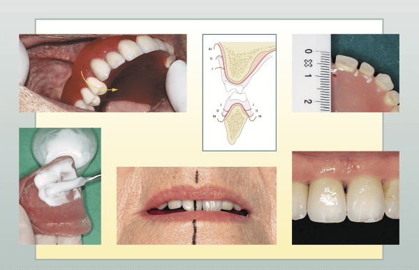Prosthetic Rehabilitation the best Dentist in Guntur