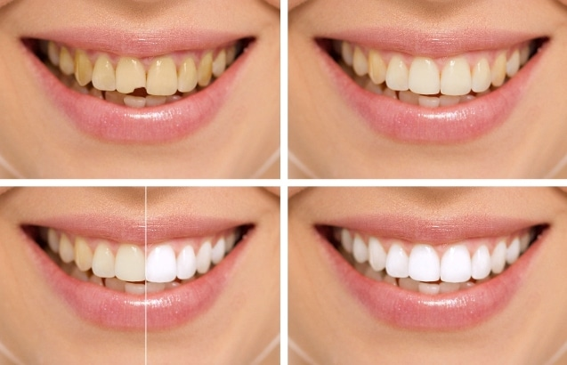 Best Smile Makeover Treatment in Guntur