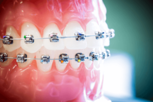 Damon Dental Braces - Sowmya Dental Clinic Guntur
