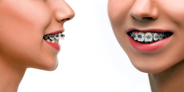 Fixed Dental Braces Sowmya Dental Clinic Guntur
