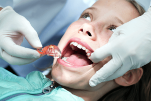 Removable Dental Braces Sowmya Dental Clinic Guntur