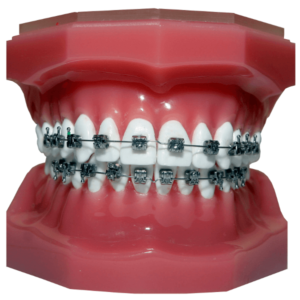 Traditional or Conventional Stainless Steel Dental Braces - Sowmya Dental Clinic - Guntur
