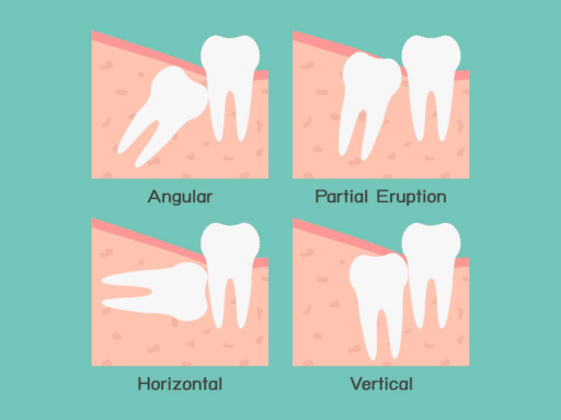 Wisdom-Teeth-Extraction-Guntur-Sowmya Multi Speciality Dental Clinic