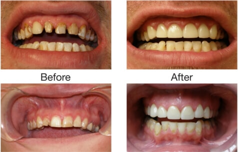 Ceramic Dental Crowns Treatment - Sowmya Dental Clinic