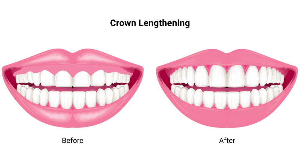 Crown Lengthening Treatment Guntur - Sowmya Dental Clinic
