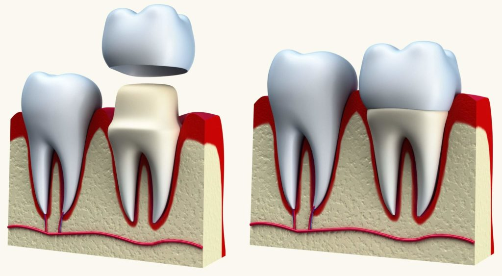 Dental Crowns Treatment - Sowmya Dental Clinic