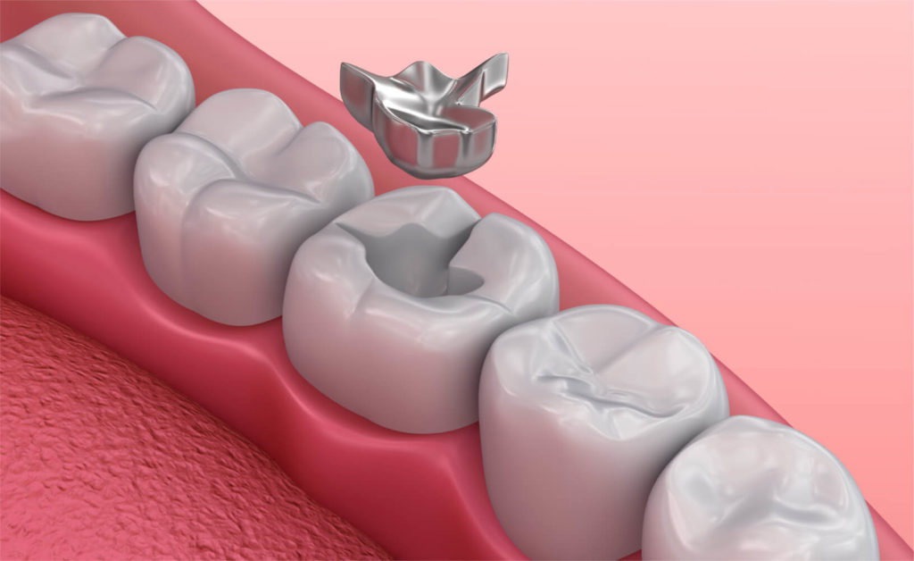 Dental Tooth Amalgam ( Silver Fillings) Treatment in Guntur