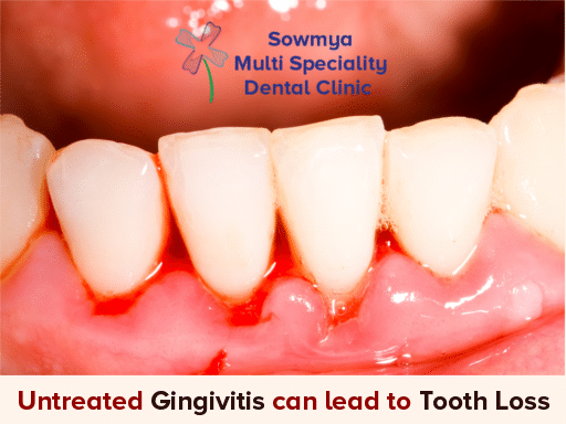 Gingivitis Treatment Guntur - Sowmya Multi Speciality Dental Clinic