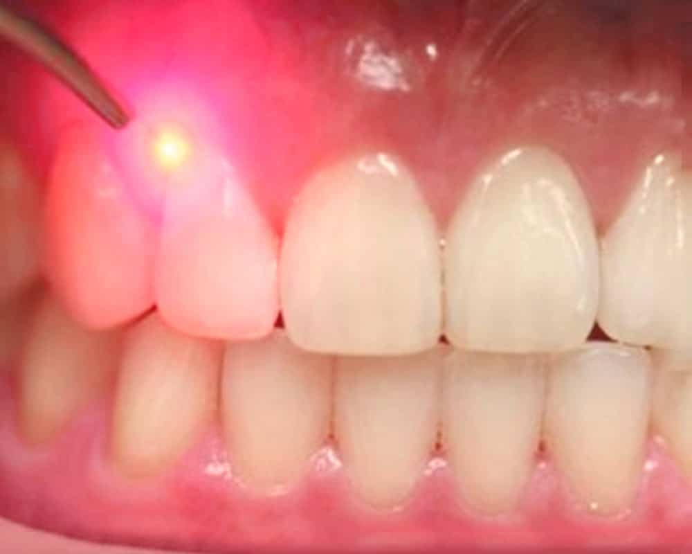 Laser Gum Treatment Periodontist - Sowmya Dental Clinc Guntur