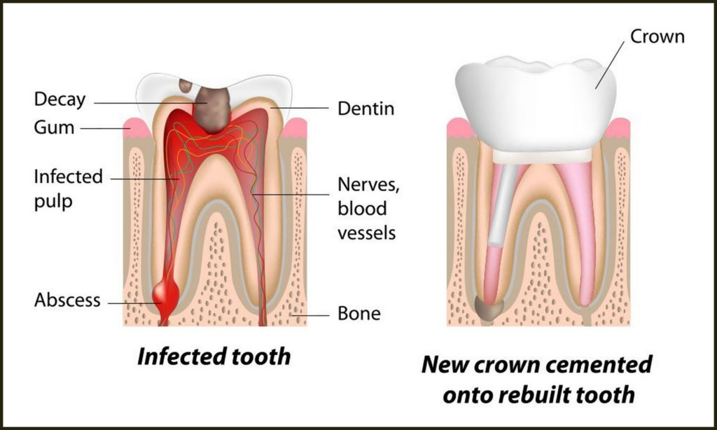 Root Canal Treatment Guntur - Sowmya Dental Clinic