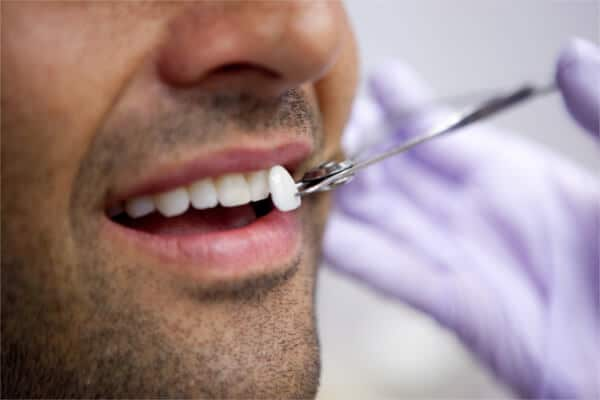 Veneers Dental Treatment - Sowmya Dental Clinic