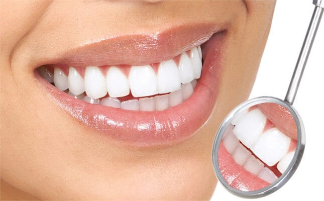 Composite Tooth Filling Treatment in Guntur