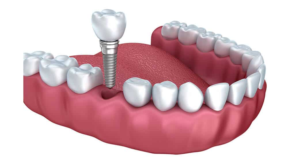 Best Dental Implants in Guntur-Sowmya Dental Clinic