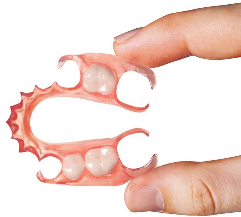 Flexible Removable Partial Dentures - Sowmya Dental Clinic - Guntur
