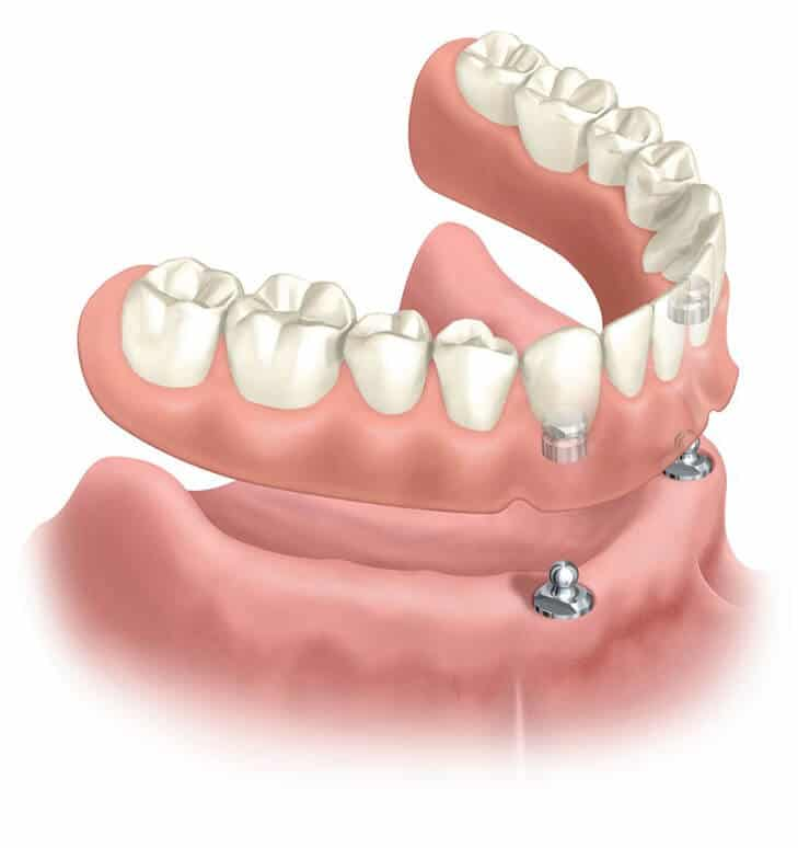 Implant Supported Fixed Denture - Sowmya Dental Clinic Guntur