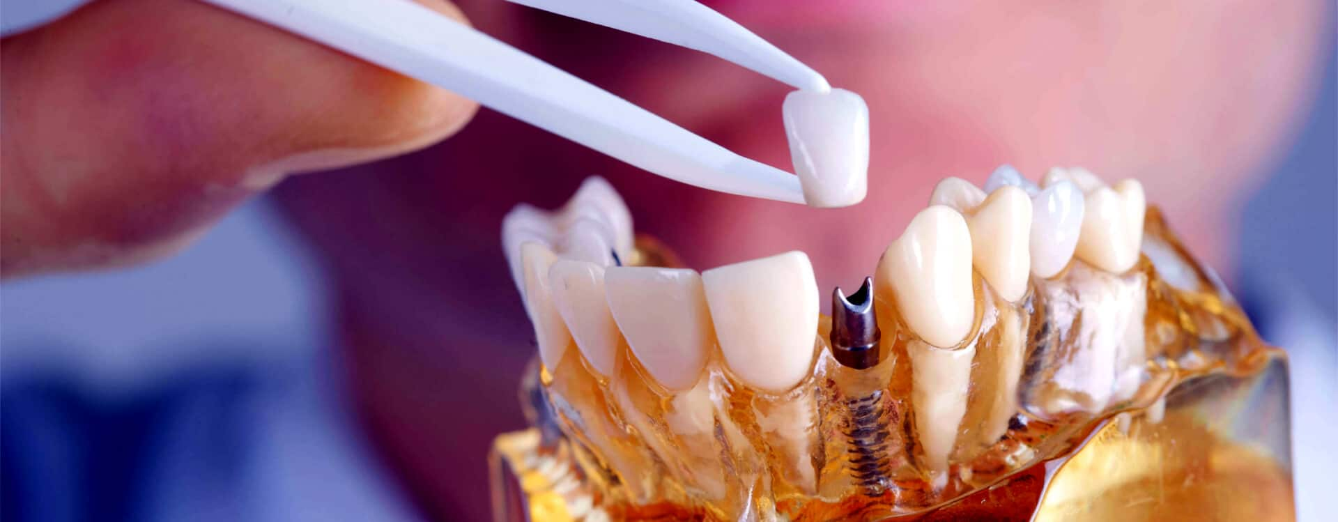 Best Dental Implants Treatment